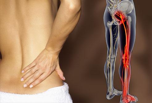 Dureri de spate sciatice